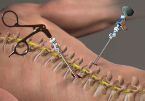 lumbar spinal stenosis surgery cost  india