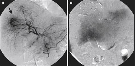 hepatic metastasis  uveal melanoma angiographic pattern predictive  survival