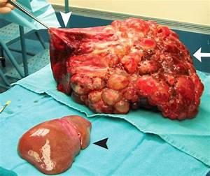 Поликистоз почек артериальная гипертония