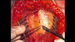 Rcs Annals Technical Tip  Preparation Of Mammary Vessels