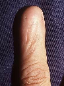 Sclerodermie longen