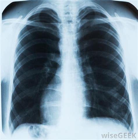 alveolitis  pictures
