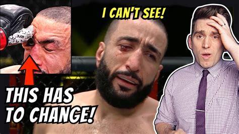 Leon edwards addresses horrific eye poke on belal muhammad | ufc fight night 187 post. Doctor Reacts to HORRIFIC Eye Poke! Belal Muhammed vs Leon ...