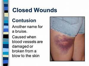 First Aid Chapter 5 Wounds. - ppt video online download