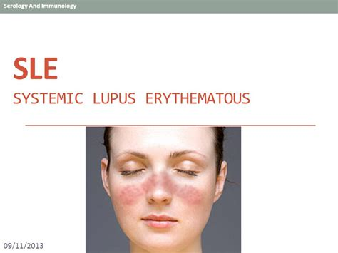 Pictures Of Sle Resumes by Sle Systemic Lupus Erythematous Ppt