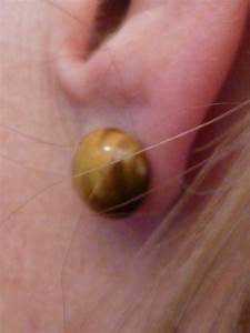 Ear Lobe Droop; Are Your Earrings Pointing toward the ...