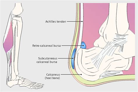 Diagram Of Heel Structure by At The Back Of The Heel The Bmj