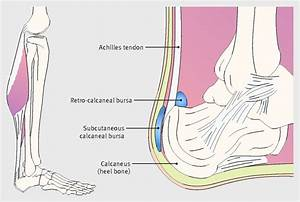 Pain At The Back Of The Heel