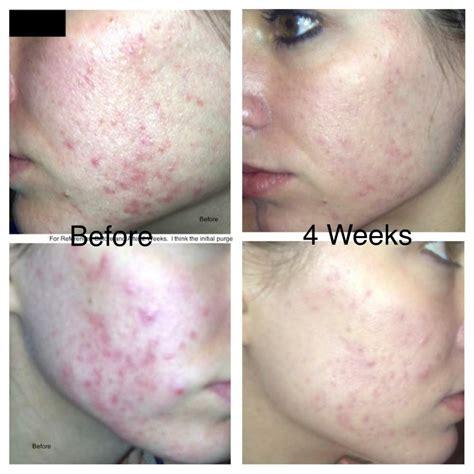 ziana solodyn aczone personal logs  shaye acne