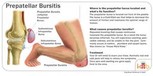 Carpet layers knee treatment carpet review bursitis diagram knee bursa related keywords suggestions ccuart Choice Image