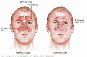 Acute Sinusitis Disease Reference Guide