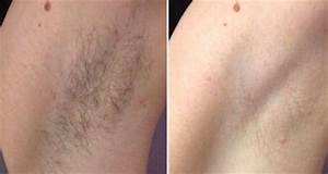 brazilian laser hair removal before and after how long ...
