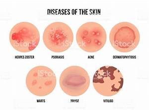 Skin Disease Types Of Dermatology Problems With Names