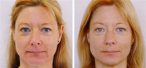Myotone | Microcurrent Facial Lifting, Toning, Wrinkle