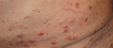 kraetze bilder zu den symptomen kraetze erkennen allergie