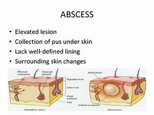 Primary Skin Lesions By Aseem