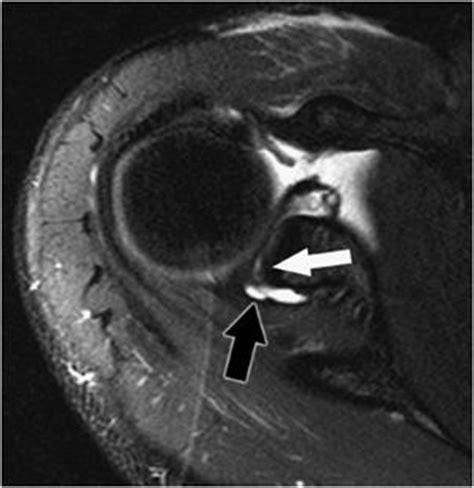 Shoulder MRI | Radiology Key