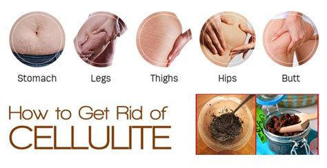 how to get rid of a on your phone how to get rid of cellulite permanently my health tips