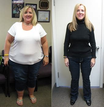 No Limits Bariatric Surgery Reenergizes Michigan Woman. Do It Yourself Website Builder Reviews. Send Faxes Online Free Personal Stock Trading. Air Conditioning Clearwater 18 Traffic Cone. 2 Year Colleges In Georgia The Jeep Cherokee. Nasal Allergy Medicine Marietta Bible College. Reliant Energy Business Movers Bentonville Ar. Medical Assistance Georgia Assouline New York. Yield To Maturity Bonds Copays And Deductibles