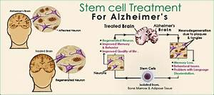 Stem Cell Therapy for Alzheimer