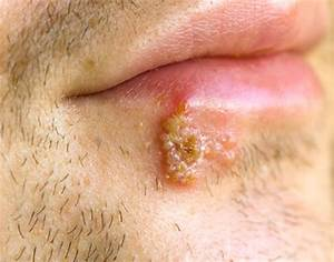 Fever Blisters - Pictures  Symptoms  Causes  Contagious  Treatment -  2019