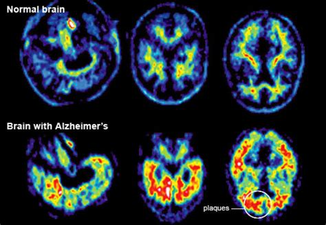 pet barrier alzheimers brain pictures
