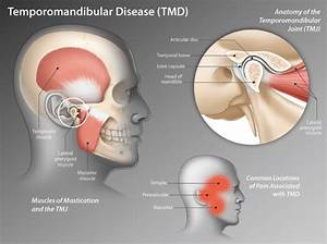 Time To Chew On Temporomandibular Disease