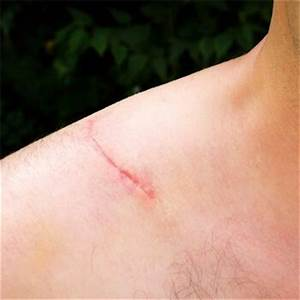 Dog Bite Scarring - Chicago Dog Bite Injury Lawyers