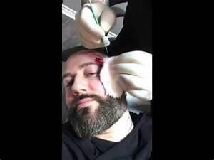 Facial scarification part 2 (a bit more graphic) - YouTube