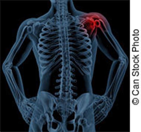 Dolore Interno Spalla Destra - clavicola immagini di archivi fotografici1 244 clavicola