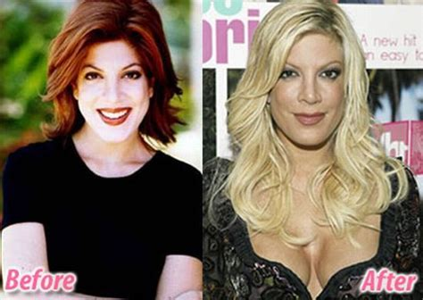 Stars Before And After Plastic Surgery (47 Pics