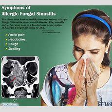 Allergic Fungal Sinusitiscausessymptomstreatment