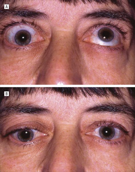 inferior oblique muscle adherence syndrome ophthalmology jama ophthalmology jama network
