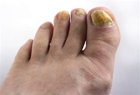picture  fungal diseases  conditions fungal nail