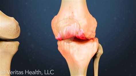 Best treatment for bone on bone knee pain