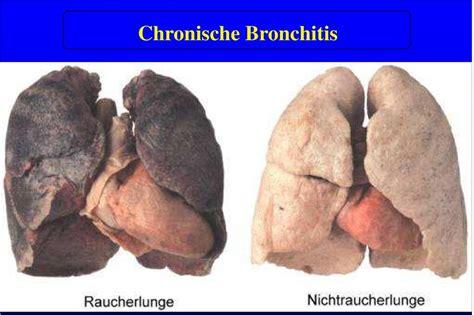 Chronisch obstruktive Atemwegserkrankungen PDF