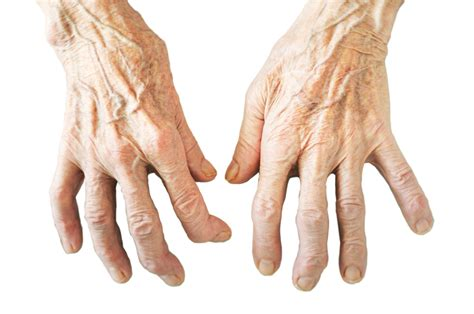 hilft gegen arthrose  den haenden apfelessig