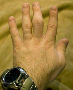 Неврастения и боль в суставах