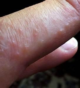 Dermatitis Herpetiformis - Still a Medical Mystery