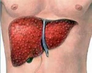 Гипертония лечение по малахову
