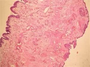 Histology Of A Fibroepithelial Polyp