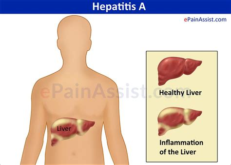 Hepatitis A Treatment, Symptoms, Signs, Prognosis, Prevention. What Causes Chronic Hives Sango Pool And Spa. Ios Developer Platform Complete Overhead Door. Rice Mba For Professionals John Kim Attorney. Life Insurance Without Medical Exam. Mtn Home School District Nanny Agency In Nj. The Best Medical Insurance In Usa. Video Conference Equipment Reviews. Affiliate Program Marketing New Product Ad