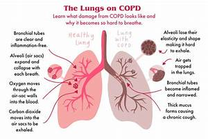 Copd  Here U2019s Exactly How It Affects Your Lungs