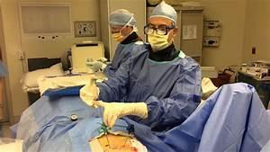Kyphoplasty Procedure Part Ii  U2013 Parkway Surgery Center
