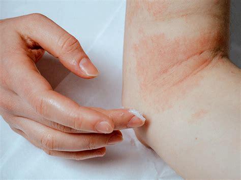 eczema symptoms treatments