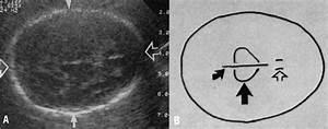 Femur Length Fetus Chart Biparietal Diameter Chart