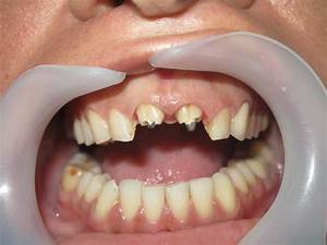 Veneers Cost Per Tooth