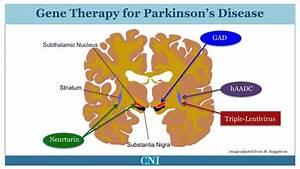 New Treatment  Symptomatic Treatment Of Parkinson U0026 39 S Disease