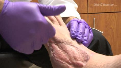 maggot therapy saves mans leg  amputation