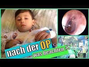 Was Ist Bei Kopfstützen Zu Beachten : operation polypen bei kindern paukenr hrchen nach der op was ist zu beachten youtube ~ Orissabook.com Haus und Dekorationen